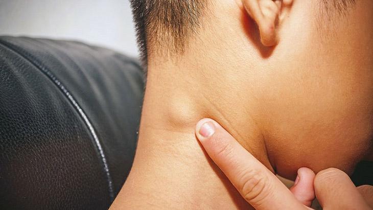 Viêm amidan cũng có thể khiến trẻ bị nổi hạch cổ
