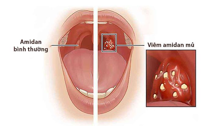 Amidan dễ dàng bị viêm vì phải tiếp xúc nhiều với mầm bệnh