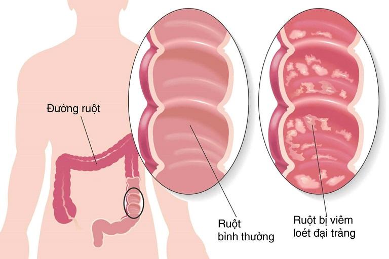Hình ảnh minh họa bệnh viêm đại tràng sigma