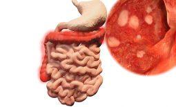 Viêm loét đại tràng là gì? Triệu chứng, phác đồ điều trị bệnh hiệu quả