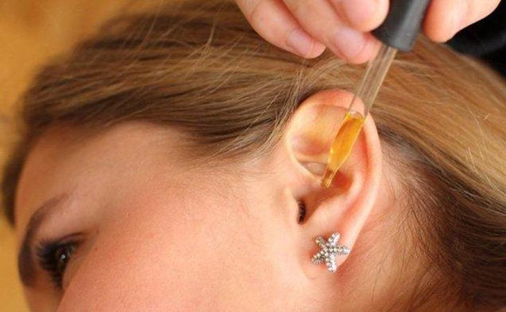 Vệ sinh tai thường xuyên để phòng chống bệnh viêm tai giữa có cholesteatoma