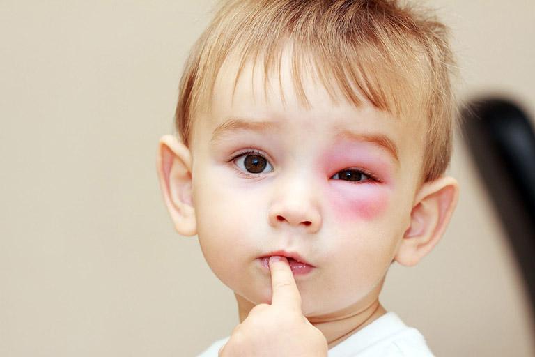 Dị ứng tiếp xúc gây nổi mẩn đỏ quanh mắt