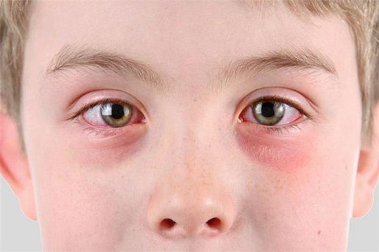 Nổi mề đay có thể gây mẩn đỏ tại nhiều vị trí trên cơ thể, trong đó có vùng da quanh mắt
