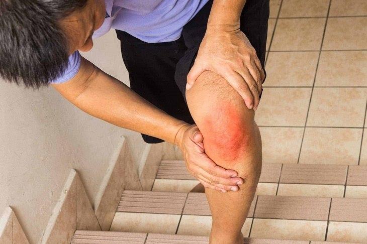 Đau nhức xương khớp khiến người bệnh đi lại khó khăn