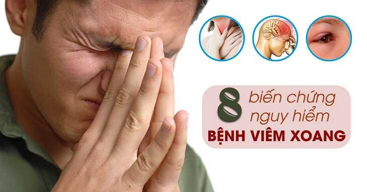 Viêm xoang có thể gây các biến chứng nguy hiểm đến tính mạng