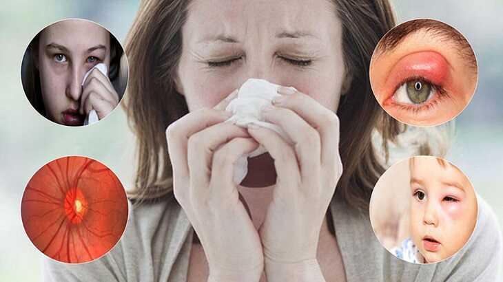 Các biến chứng của viêm xoang về mắt