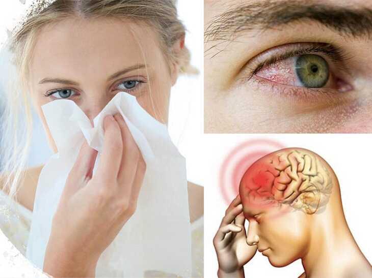 Một số biến chứng mắt và não của viêm xoang