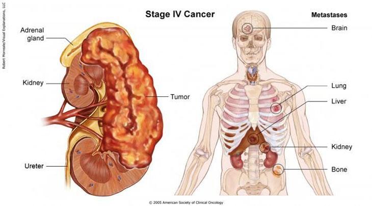 Ung thư đại tràng giai đoạn cuối