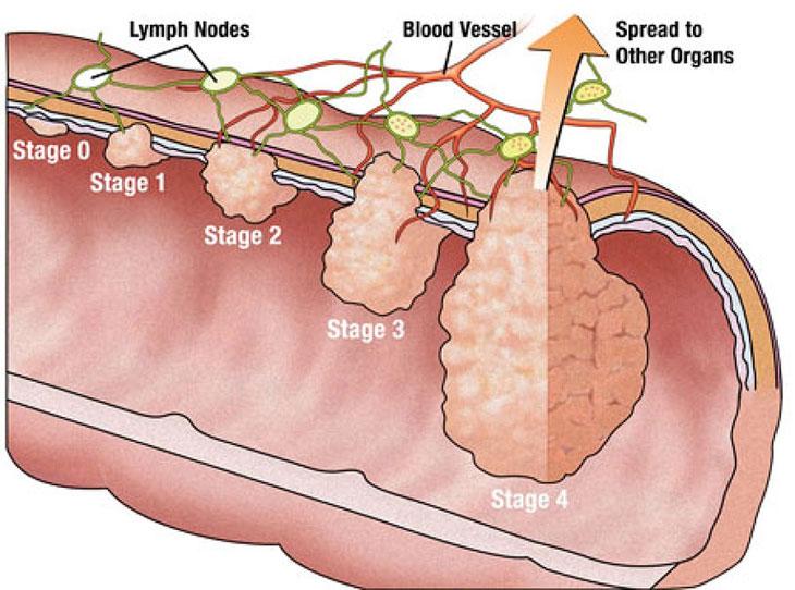 Ung thư đại tràng giai đoạn 2