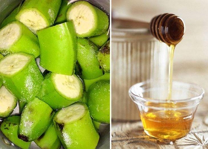 Chuối xanh kết hợp với mật ong giúp tăng hiệu quả điều trị đau dạ dày