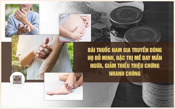 Bài thuốc trị nổi mẩn ngứa có 1-0-2 cho phụ nữ sau sinh