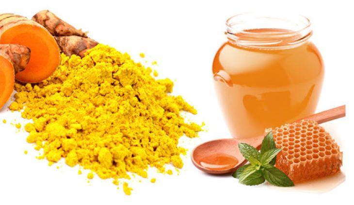 Chữa viêm đại tràng bằng nghệ mật ong là một biện pháp điều trị tại nhà rất phổ biến