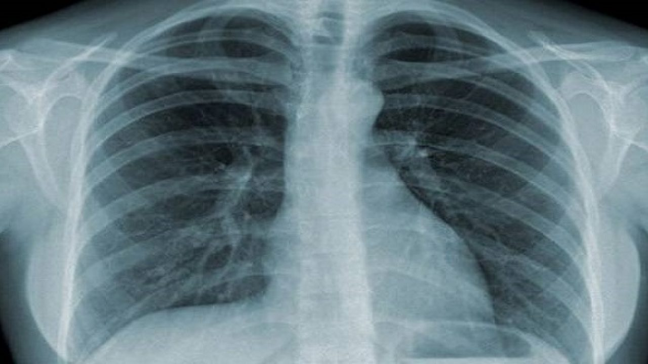 Hình ảnh phim chụp X quang - Hãy cùng tìm hiểu phương pháp chẩn đoán hình ảnh phổ biến này