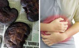 Dạ dày nhím chữa đau dạ dày được đánh giá an toàn hiệu quả