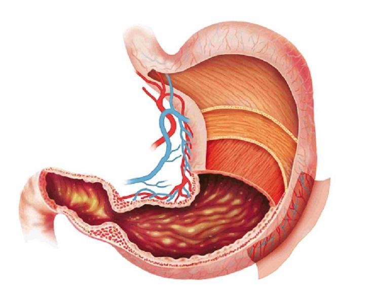 Đau dạ dày cấp là gì?