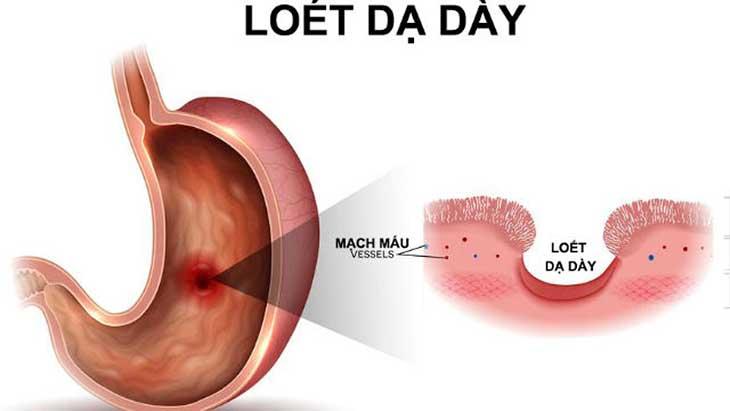 Tình trạng đau thượng vị trái có thể là biểu hiện của viêm loét dạ dày