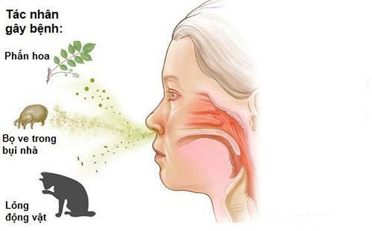 Trong thời gian chữa viêm mũi dị ứng không nên tiếp xúc với các tác nhân gây bệnh