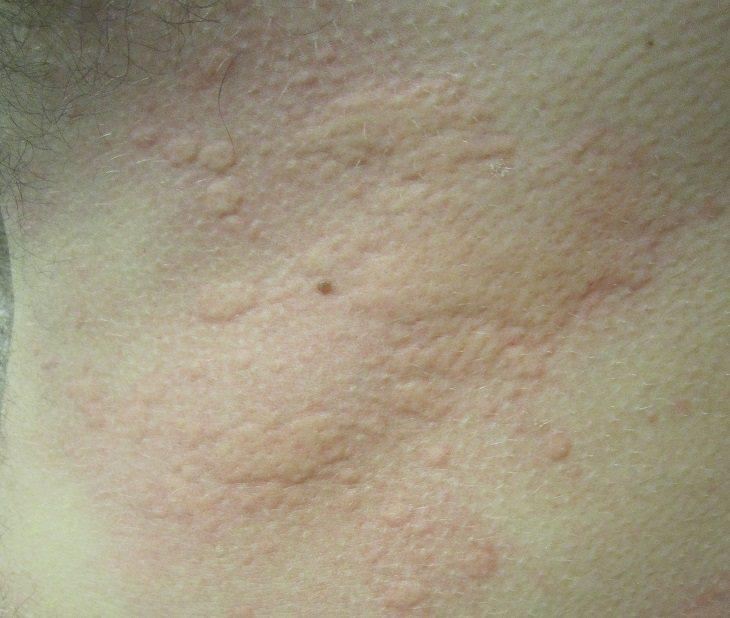 Mẩn ngứa da do mề đay là căn bệnh rất phổ biến
