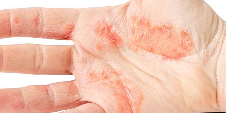 Tỷ lệ người bệnh bị nổi mẩn ngứa lòng bàn tay do lupus ban đỏ vô cùng thấp
