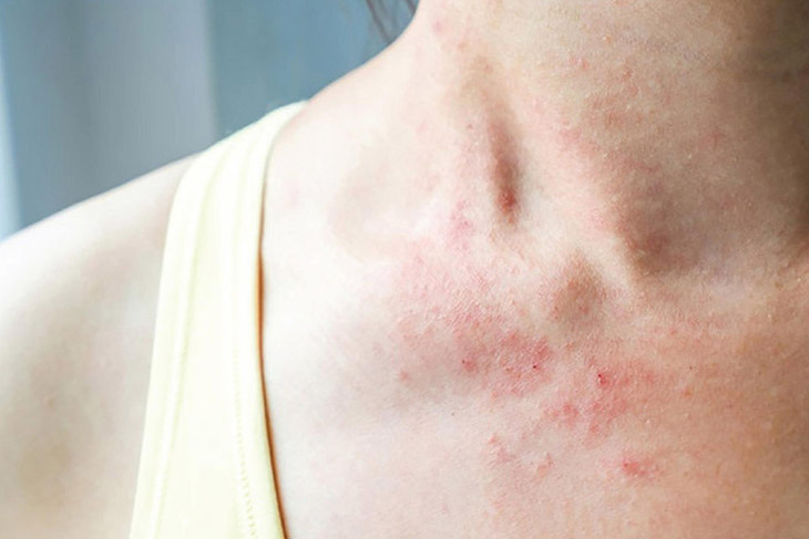Viêm da cơ địa gây nổi mẩn ngứa ở cổ
