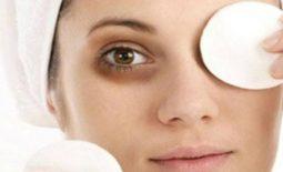 Thường xuyên thức khuya, mất ngủ mắt thâm quầng phải làm sao?