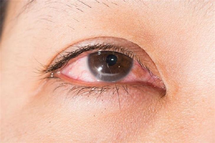 Ngứa mắt do viêm mũi dị ứng có thể dẫn đến đau mắt đỏ