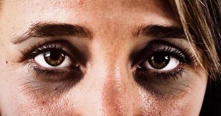 Vùng da quanh mắt vốn rất mỏng, dễ bị thâm quầng vì mất ngủ