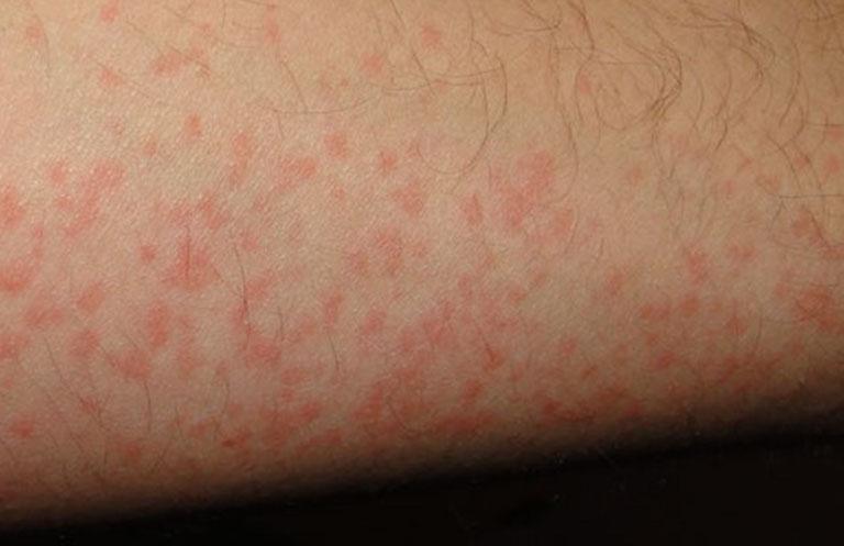 Dị ứng thuốc có thể gây nổi mẩn đỏ trên da