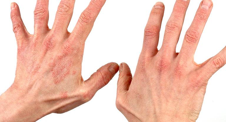 Nổi mẩn đỏ không ngứa đa số là do dị ứng, có một số trường hợp do một số bệnh lý nguy hiểm gây ra