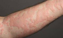 Nổi mề đay gây nổi mẩn ngứa thành mảng lớn trên tay