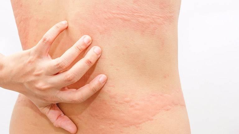 Nổi mẩn ngứa thành mảng thường có thể tự khỏi sau vài ngày tới vài tuần