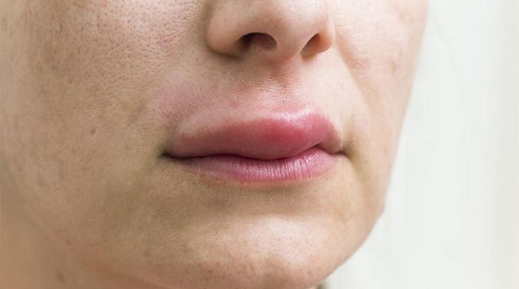 Mề đay có xu hướng tồn tại lâu trong cơ thể nên dẫn tới sưng môi