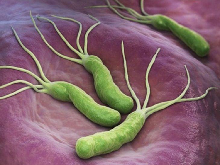Vi khuẩn Hp là một trong những nguyên nhân gây đau dạ dày ở trẻ