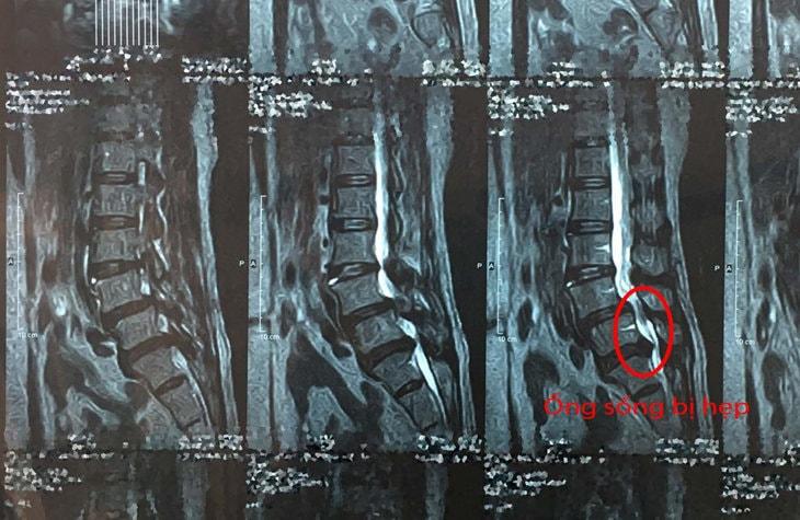 Phim chụp Mri thể hiện ống sống bị hẹp vì khối thoát vị