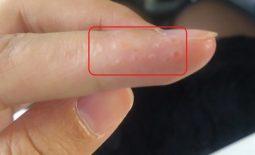 Nổi mẩn ngứa và mụn nước nhiều là dấu hiệu bệnh viêm da dị ứng