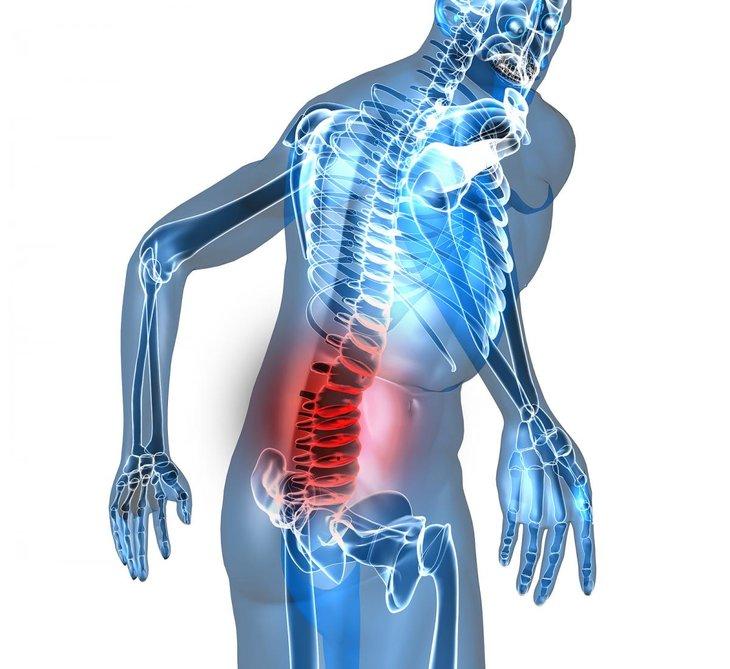 Cách phòng ngừa bệnh xương khớp