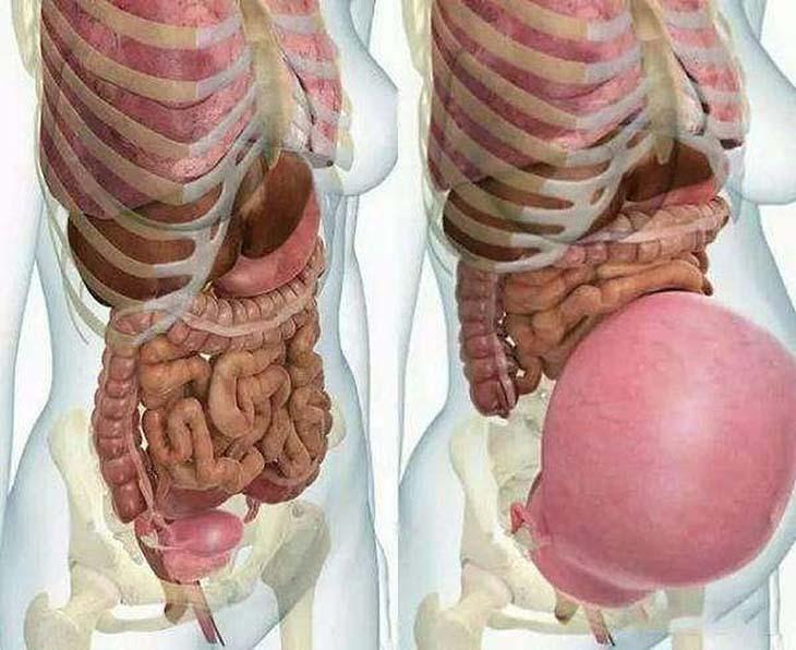 Thai nhi lớn dần khiến nội tạng bị chèn ép dẫn tới bệnh đau thượng vị