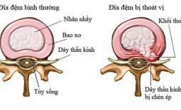 Hình ảnh đĩa đệm thoát vị chèn lên rễ thần kinh