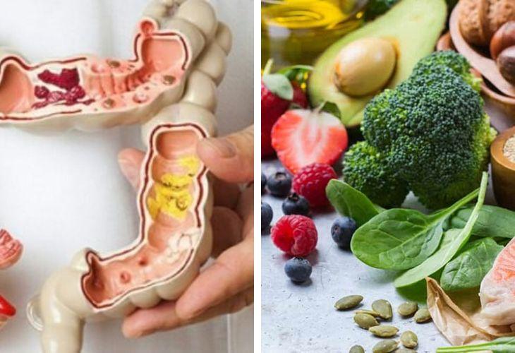 Thực đơn cho bệnh nhân ung thư đại tràng hỗ trợ điều trị bệnh và cung cấp đầy đủ chất dinh dưỡng
