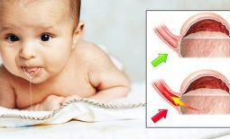 Thuốc chữa trào ngược dạ dày cho bé
