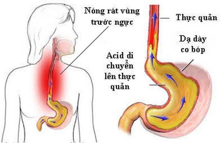 Trào ngược dạ dày là tình trạng axit, pepsin trong dạ dày bị đẩy ngược lên thực quản