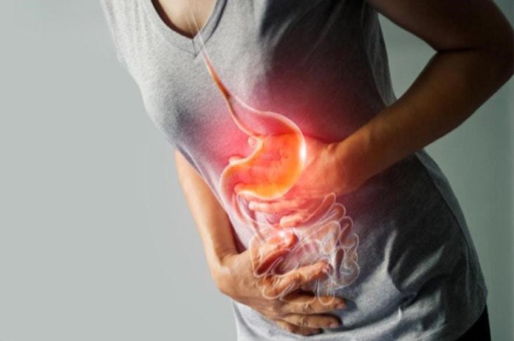 Nexium thuốc dạ dày hỗ trợ người mắc trào ngược dạ dày