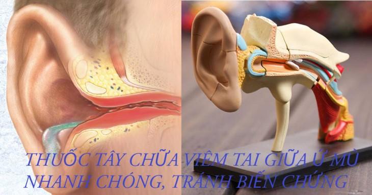 Chữa viêm tai giữa bằng thuốc là cách nhanh chóng nhất để khỏi bệnh