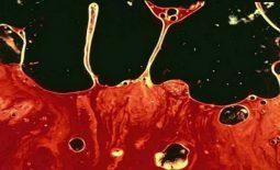 Tinh trùng màu nâu là bệnh gì? Nguyên nhân, cách điều trị