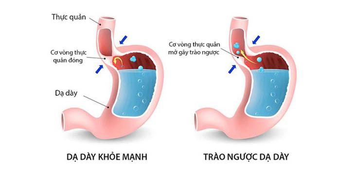 Trào ngược dạ dày thực quản là bệnh lý đường tiêu hóa phổ biến