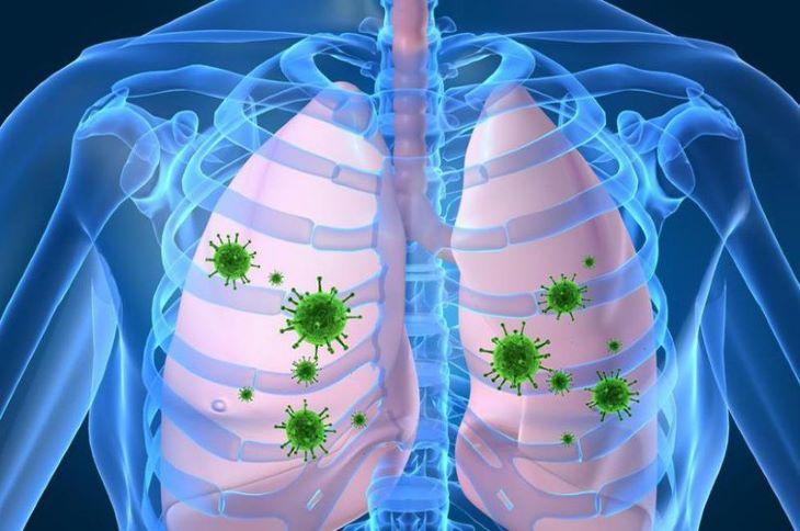 Vi khuẩn xâm nhập và tấn công gây viêm phổi hít