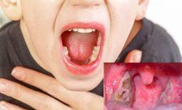 Viêm họng hạt có mủ là bệnh hô hấp thường gặp ở trẻ em