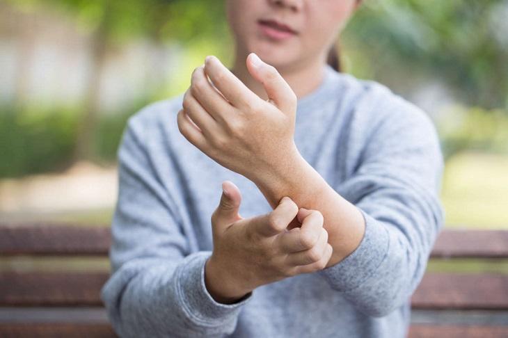 Nổi mẩn ngứa là triệu chứng thường gặp của bệnh mề đay cấp