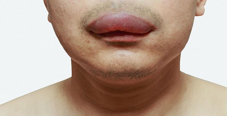 Nổi mề đay phù môi sẽ khiến phần môi bị sưng
