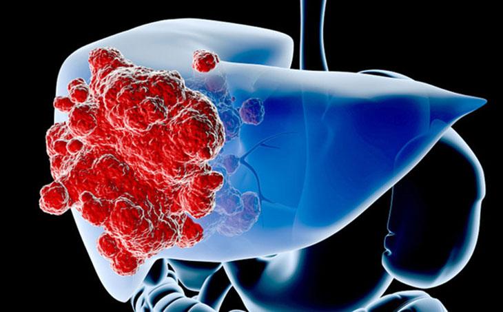 Tế bào ung thư di căn đến gan